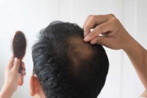 גבר מקריח נוגע בשיערו
