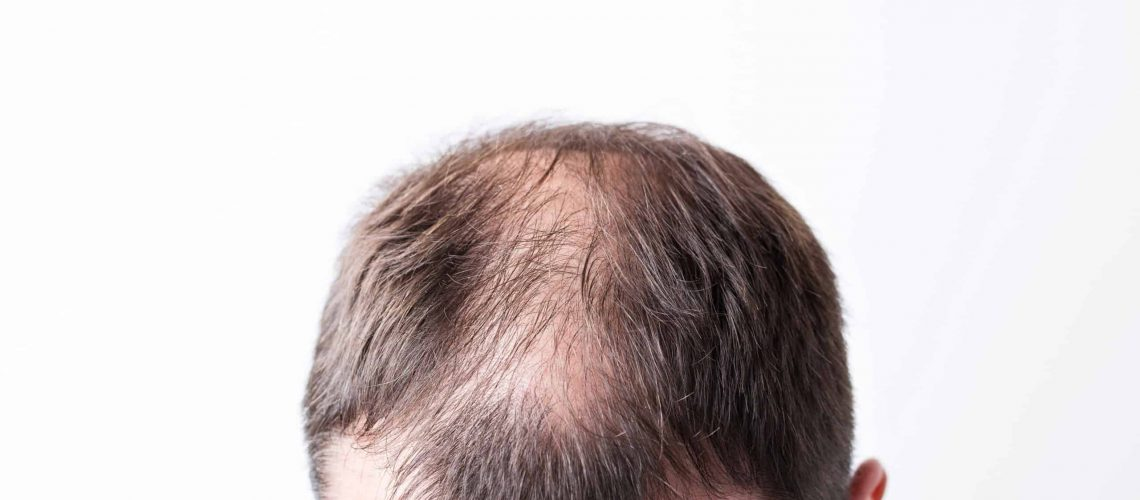 close-up-balding-head-young-man-white-isolated-background_optimized