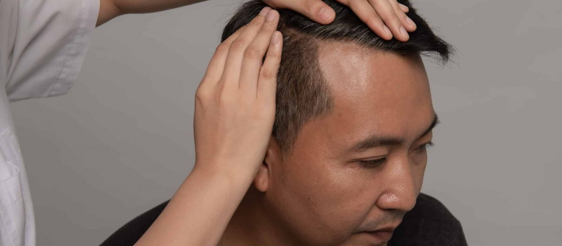 dermatologist-checking-patient-s-hair-asian-man-gray-hair-worry-hair-loss-problem-health-care-shampoo-concept